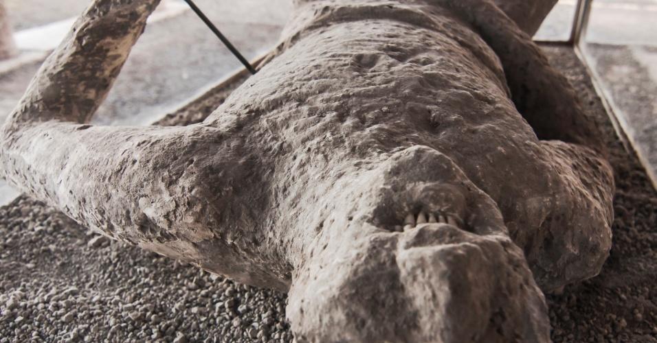 O formato dos corpos e rostos das vítimas do Vesúvio no momento de suas mortes foi preservado por uma técnica com gesso desenvolvida por Giuseppe Fiorelli, diretor de escavações de Pompeia entre 1860 e 1875