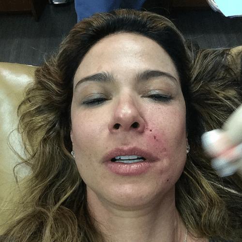 23.abr.2014 - Luciana Gimenez mostra rosto sangrando em tratamento estético feito nos Estados Unidos