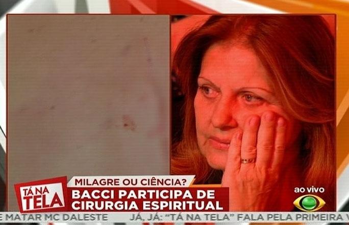 4.ago.2014 - Bacci participa de uma cirurgia espiritual; plateia reage às imagens
