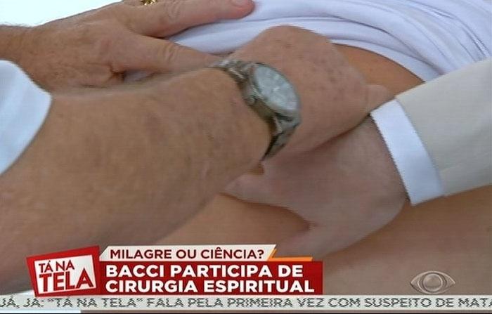 4.ago.2014 - Bacci participa de uma cirurgia espiritual