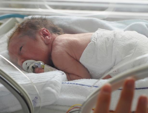 Um terço das mulheres em trabalho de parto prematuro recebe tratamentos ineficazes - Getty Images