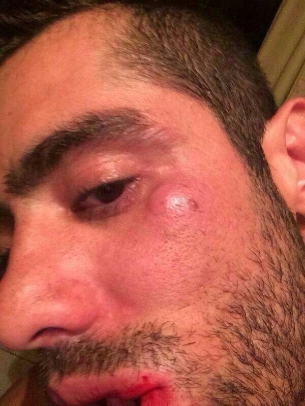 5.set.2014 - Ex-BBB Yuri mosta hematomas no rosto depois de brigar com a namorada Angela Sousa e ser acusado de agressão