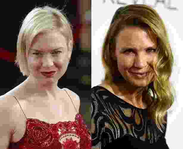 Antes e depois Renée Zellweger - Getty Images
