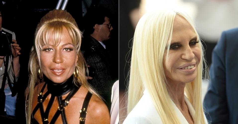 Donatella Versace - antes e depois