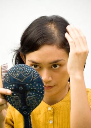 A calvície é progressiva, começa normalmente na adolescência ou no começo da fase adulta e se manifesta com uma rarefação no topo da cabeça, sem fios visíveis caindo - iStock