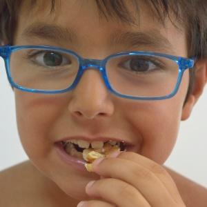 Atualmente, a alergia ao amendoim afeta uma em cada 50 crianças no Reino Unido - Getty Images
