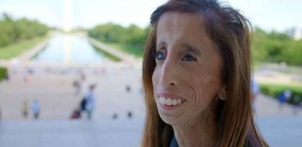 Lizzie é ativista anti-bullying e tema de documentário - BBC