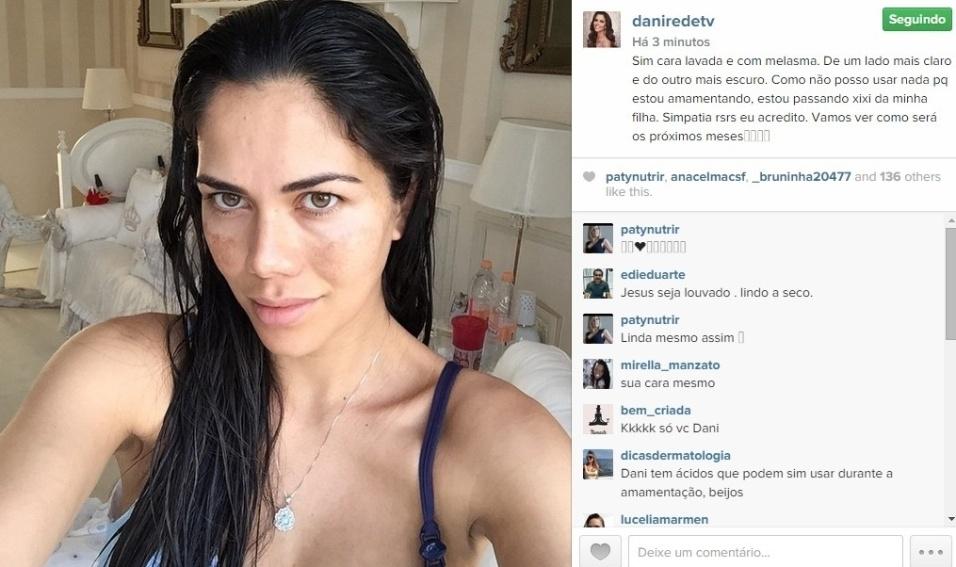 """10.abr.2015 - Daniela Albuquerque revelou em seu Instagram que faz uma simpatia inusitada para tirar manchas de pele que surgiram durante a gravidez de sua segunda filha. """"Sim cara lavada e com melasma. De um lado mais claro e do outro mais escuro. Como não posso usar nada pq estou amamentando, estou passando xixi da minha filha. Simpatia rsrs eu acredito. Vamos ver como será os próximos meses"""", revelou em seu Instagram"""