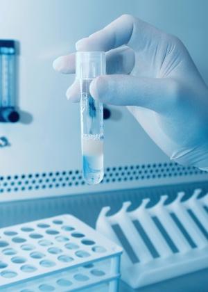 Os espermatozoides foram criados a partir de biópsias testiculares de pacientes - Getty Images