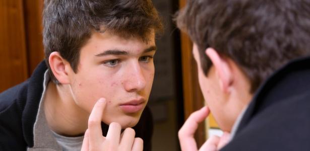 Resultado das alterações hormonais da puberdade, a acne angustia meninos e meninas - Getty Images
