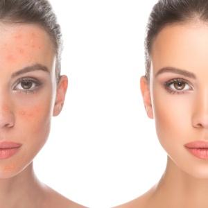 Alimentação balanceada e limpezas diárias ajudam a evitar o surgimento da acne - iStock