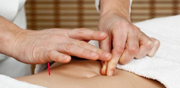 Acupuntura estética é alternativa de tratamento de estrias e celulites - iStock