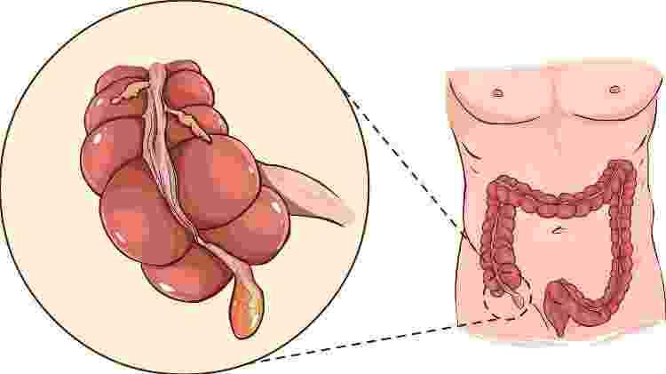 O apêndice é um órgão em forma de tubo situado na junção do intestino grosso e delgado - iStock