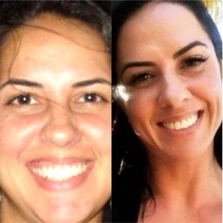 Graciele Lacerda exibe antes e depois de seu rosto - Reprodução / Instagram