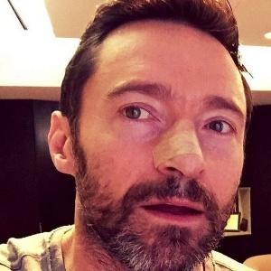 Jackman postou foto com curativo no nariz após retirar mais um carcinoma basocelular  - Reprodução/Instagram/thehughjackman