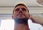Ex-BBB Jonas Sulzbach mostra aplicação de botox: