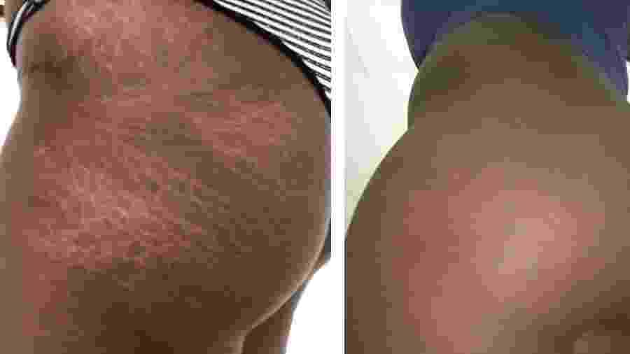 A tatuagem pode aumentar a autoestima de quem se incomoda com estrias, mas também mudar de cor com o tempo e destacar as marcas na pele  - Divulgação/Fernanda Jaffre