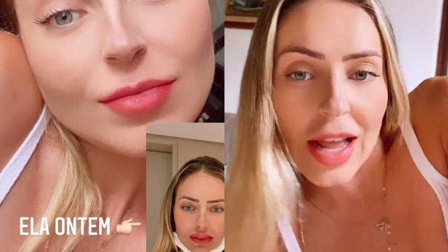 Paula Sperling mostrou resultado de procedimento nos lábios para realçar a boca - Reprodução/Instagram