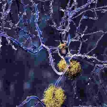 O acúmulo de beta-amiloides tem relação com o surgimento do Alzheimer - iStock