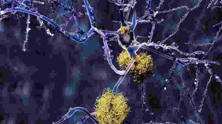 Alzheimer, beta-amiloide - iStock - iStock