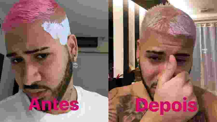 Procedimento dá errado e cabelo de Kevinho começa a cair - Reprodução/Instagram