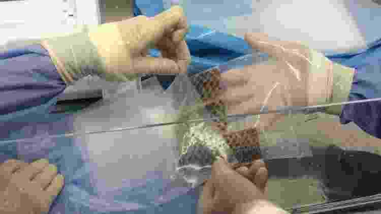 A pele de tilápia é aplicada como um curativo sobre queimaduras - Divulgação - Divulgação