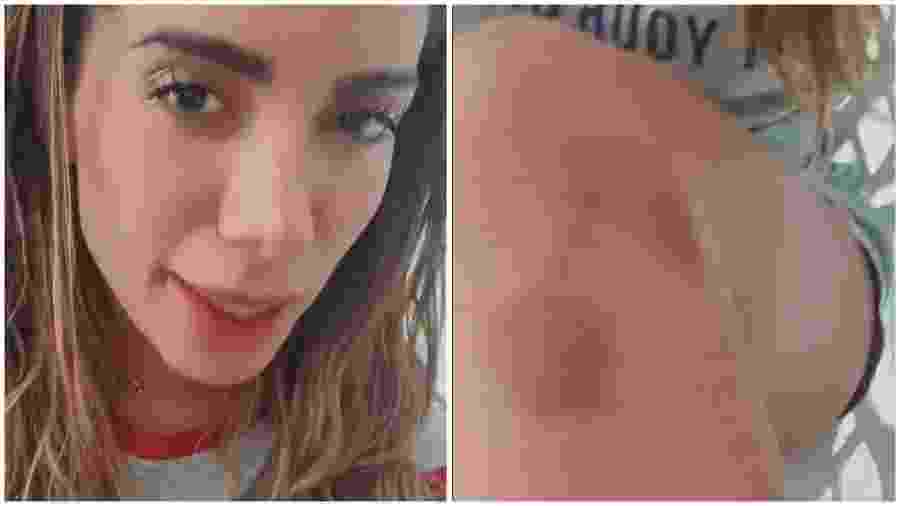Anitta mostra machucado após coreografia - Instagram
