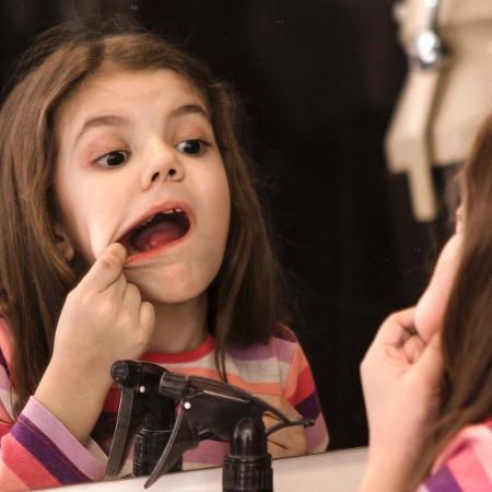A estomatite é uma doença bastante comum principalmente em crianças - iStock