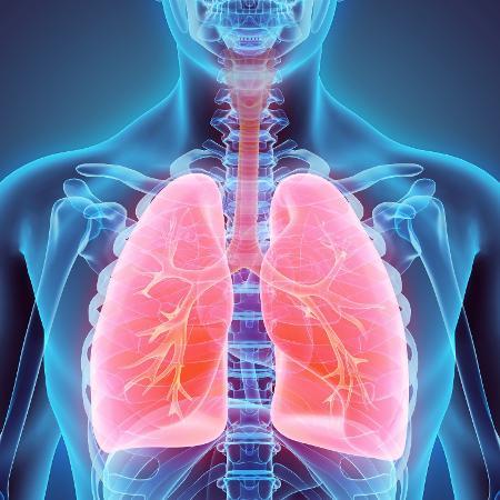 Câncer de pulmão é identificado em estágio avançado em 86% dos casos