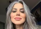 Vanessa Mesquita desabafa sobre síndrome do pânico e mostra queda de cabelo (Foto: Reprodução/Instagram @vanmesquita)