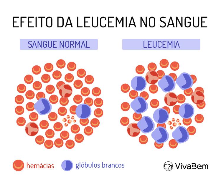 Leucemia linfocitica aguda tem cura