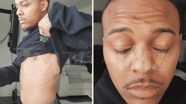 O ator Shad Moss mostra os machucados após briga com a namorada - Reprodução/TMZ - Reprodução/TMZ