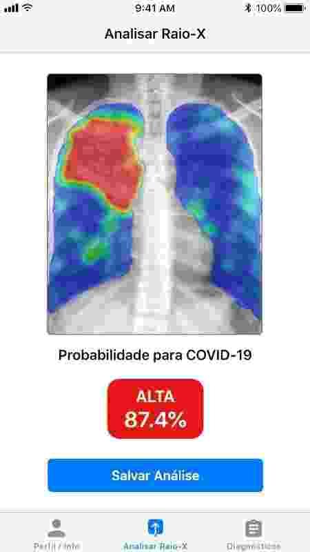 Imagem de diagnóstico em aplicativo desenvolvido pela Otawa Health  - Divulgação - Divulgação