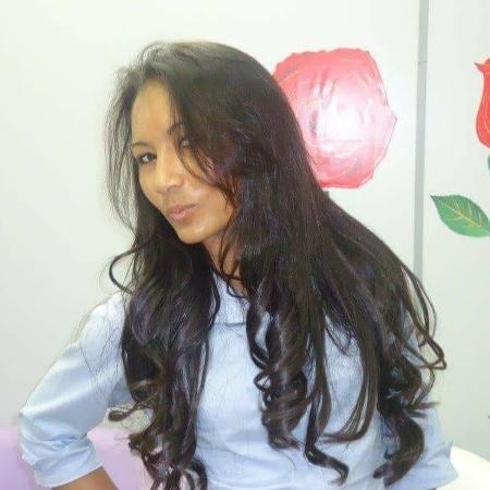 Balbina Figueiredo sofreu o acidente durante a infância - Arquivo Pessoal