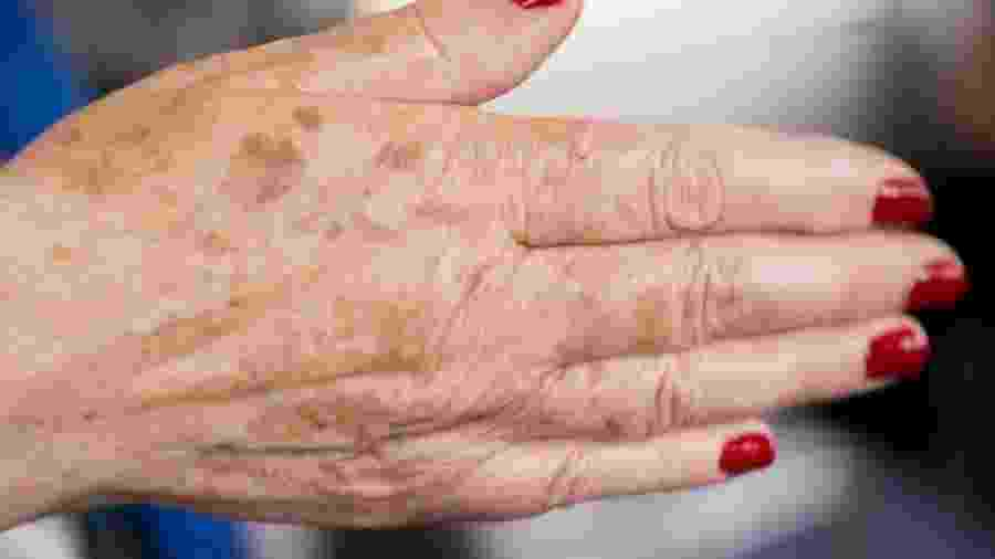 Se as manchinhas nas mãos te incomodam, alguns tratamentos podem ser eficazes para diminui-las - iStock