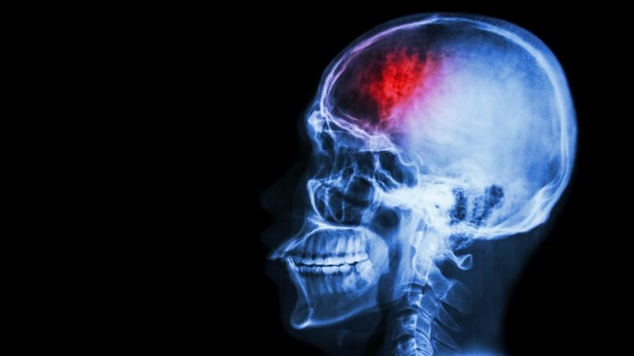 7 fatos sobre o AVC que talvez você não conheça e como prevenir-se