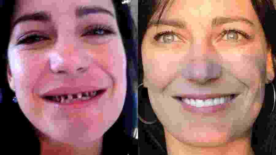 Antes e depois de Natalia - BBC