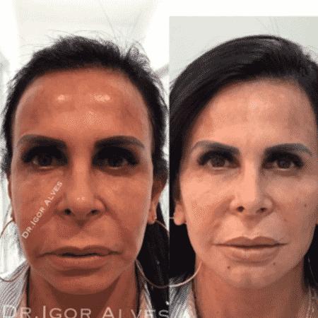 Gretchen passa por harmonização facial e mostra antes e depois - Reprodução/Instagram
