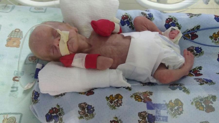 Diana nasceu com 27 semanas de gestação; a mãe, Gisele Mafra, foi diagnosticada com pré-eclâmpsia - Arquivo Pessoal