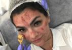Microagulhamento: em nova versão robótica, técnica com agulhas firma a pele - Reprodução/Instagram