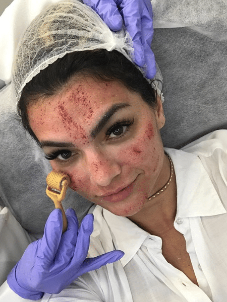 Kelly Key fazendo o microagulhamento com o dermaroller - Reprodução/Instagram