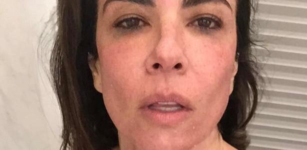 Luciana Gimenez mostra rosto após tratamento com aparelho Dermaroller
