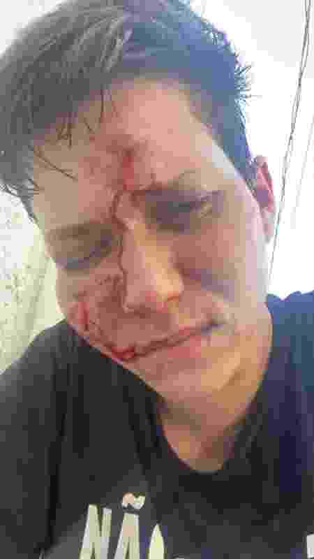 Karol Eller foi agredida - Arquivo Pessoal  - Arquivo Pessoal