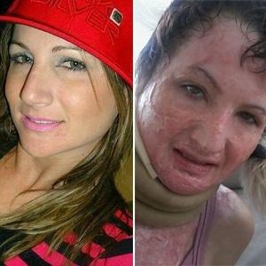 À esquerda, foto de Lidia antes do incidente - Reprodução/Facebook