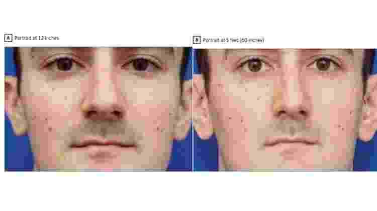 A primeira foto foi tirada como selfie (a 30 cm do rosto). A segunda, a 1,5 metro - Divulgação - Divulgação