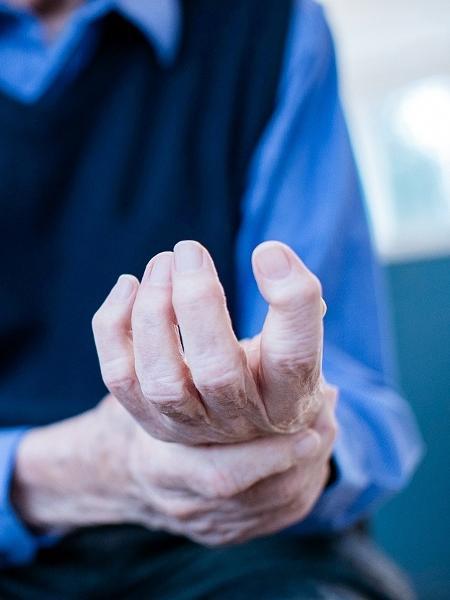 A espasticidade causa descontrole e rigidez muscular, prejudicando os movimentos da região afetada - Getty Images