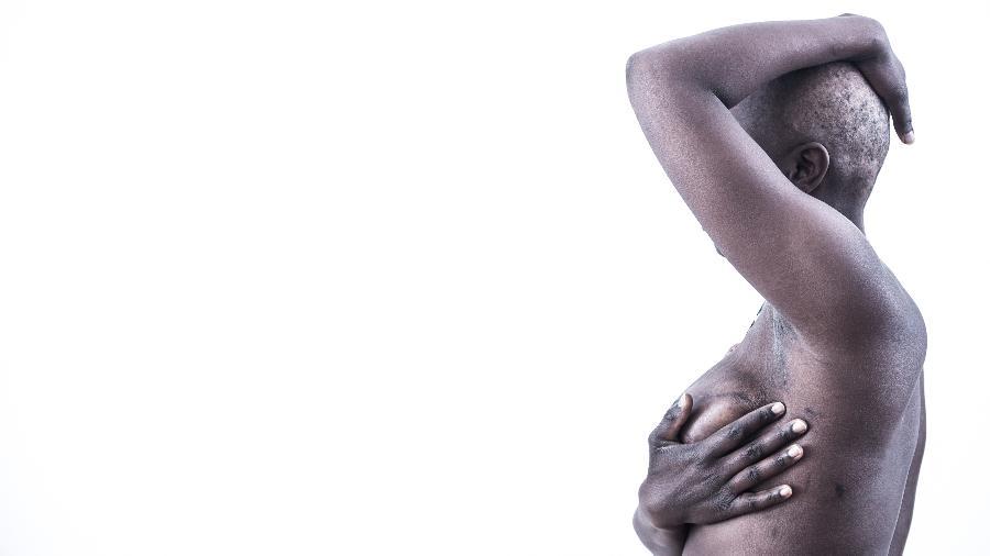 """Meninas têm o seio """"passado"""" com pedra quente no reino Unido. Objetivo é evitar assédio e estupro - Getty Images"""