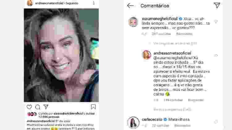 Andrea Sorvetão mostra harmonização facial e Xuxa critica - Reprodução/Instagram
