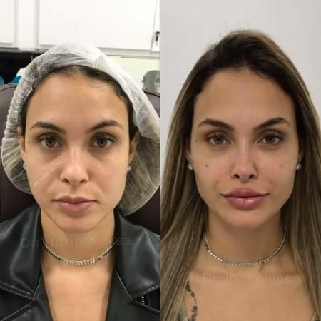 Sarah realizou mais procedimentos estéticos no rosto após deixar o BBB - Reprodução / Instagram