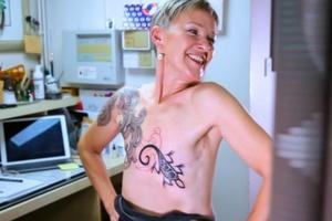 c607b3781 Sobrevivente do câncer de mama transforma cicatrizes da mastectomia em arte